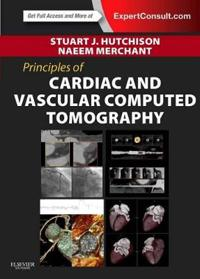 Principles of Cardiac and Vascular Computed Tomography